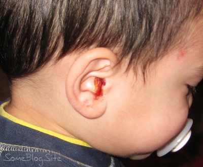 picture of a bloody ear