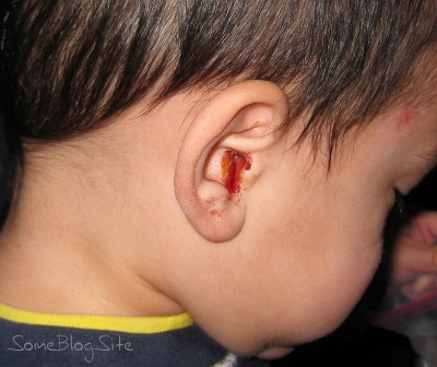picture of an ear bleeding due to an infection
