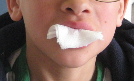 How to put gauze in mouth